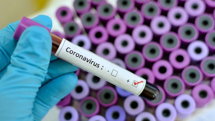 Регистрираните заразени с COVID-19 у нас са 2023
