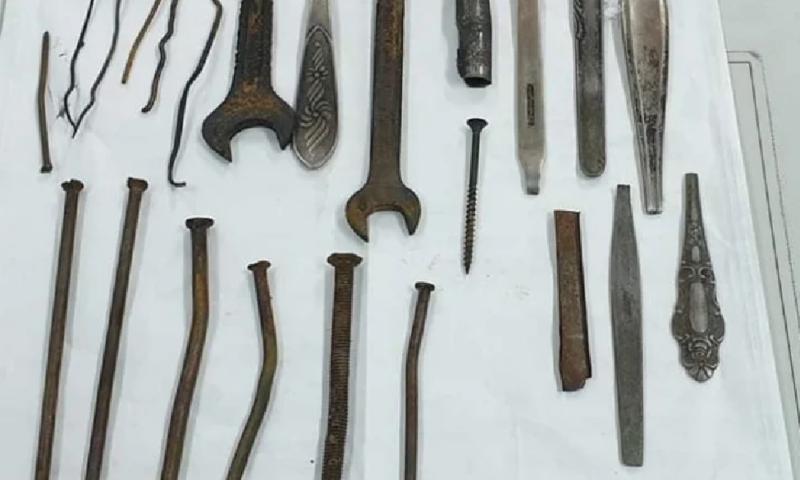 Извадиха гаечен ключ, тел, отвертка, пирони и лъжици от стомаха на мъж