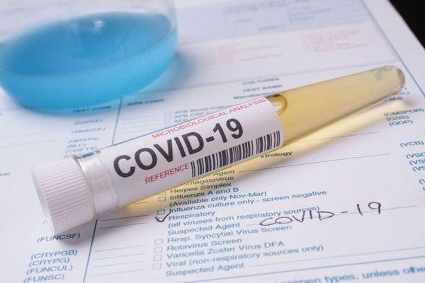 Парламентът ратифицира споразумението за ваксини срещу COVID-19