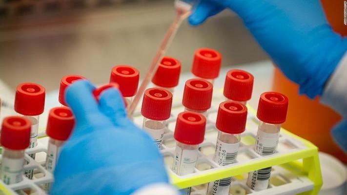 Намалява броят на хоспитализираните от Ковид-19 и има повече изписани в Сърбия