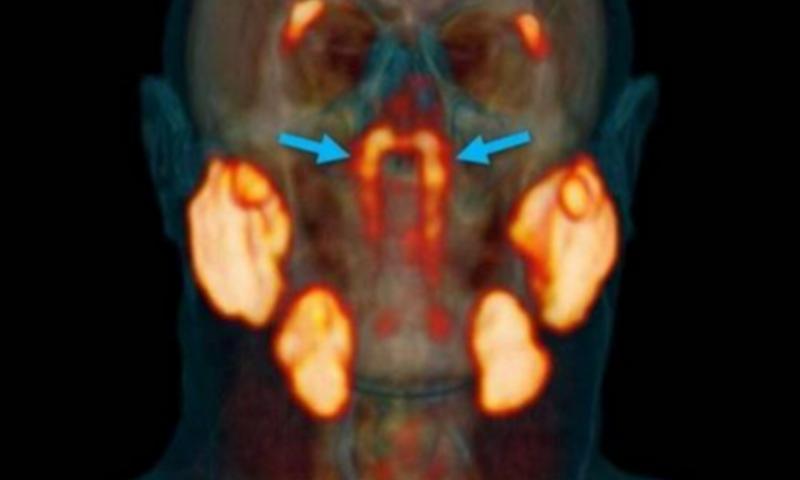 Лекари се натъкнаха по случайност на сензационно откритие в човешката глава